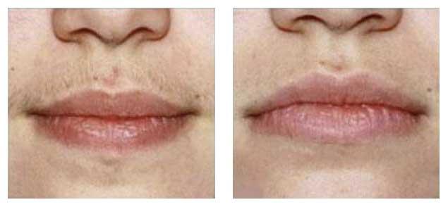 Epilation de la lèvre