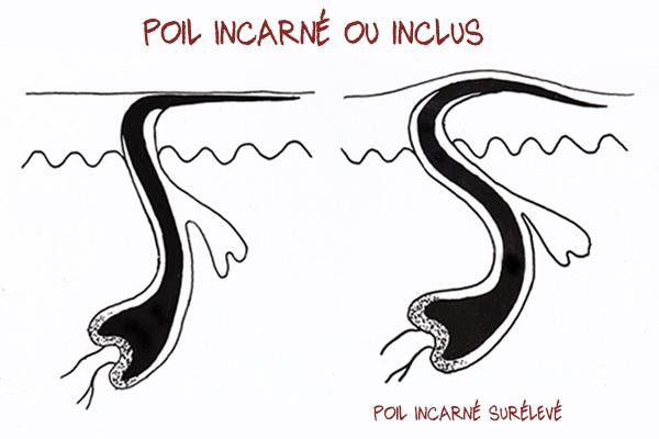 Poil incarné (ou inclus)