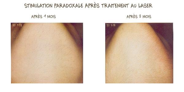 stimulation paradoxale laser menton