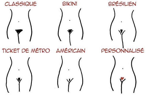 Différentes formes d'épilation du maillot chez une femme